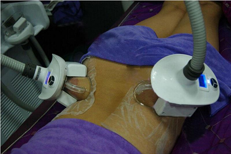 Cryolipolysis Cryolipolysis Slimming Machine Cellulite